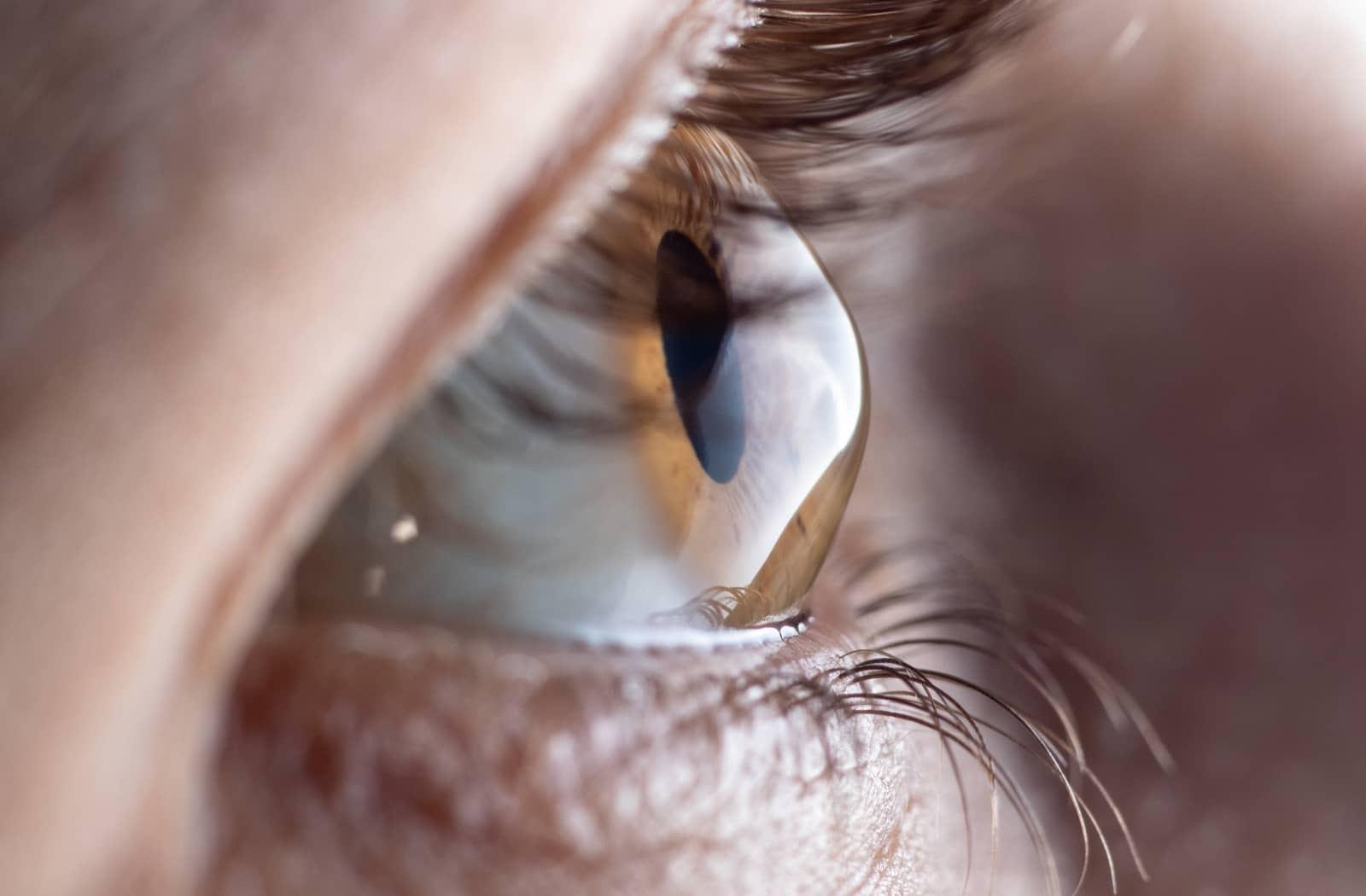 A common cornea condition is keratoconus