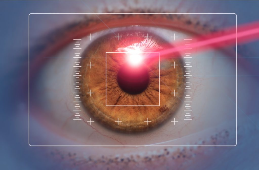 Rendering of red laser shining into brown eye with grid on top
