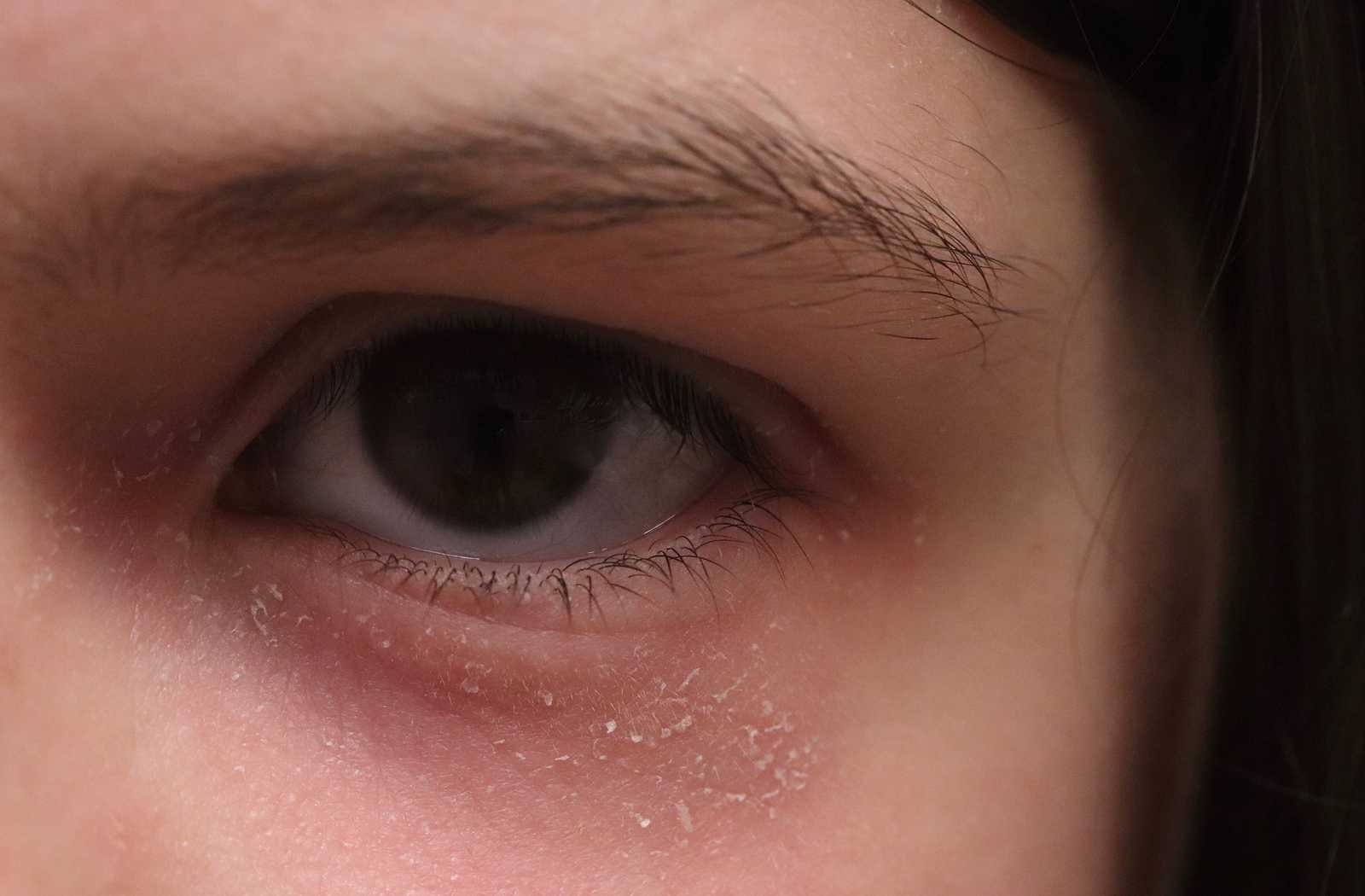 closeup of young woman with dry flaky eyelids in low lighting